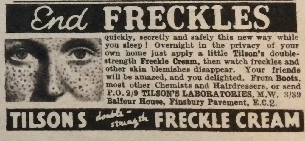 "Vintage 1930s Magazine advert for Tilson's Double Strength Freckle Cream headlined ""End Freckles""."
